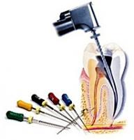 http://stomcenter.bg/medication_1  Първо се поставя местна анестезия и зъбът се отваря, изчиства се съдържимото на кореновите канали и трябва прецизно да се определи дължината им.  - Услуги
